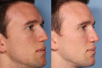 Nose reshaping-rhinplasty