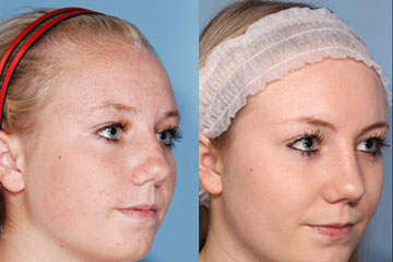 nose reshaping - rhinoplasty